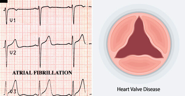 Atrial Fibrillation And Heart Valve Disease