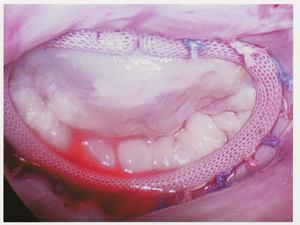Patient Mitral Valve After Heart Valve Repair Surgery