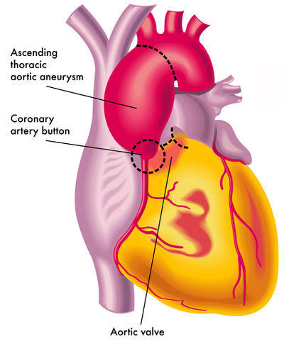 Treatment Guidelines: Bicuspid Aortic Valves & Aortic ...