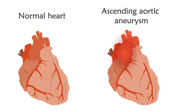 Ascending Aortic Aneurysm Comparison