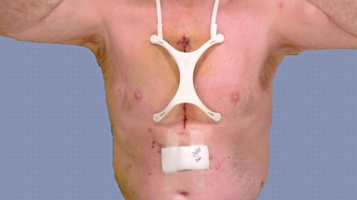 Incision Shield On Patient After Cardiac Surgery