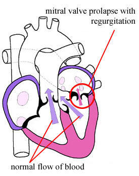 Mitral valve prolapse - Wikipedia, the.