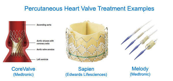 Percutaneous Aortic Valve Implantation Devices