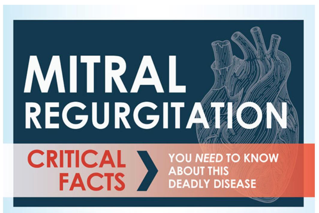 Mitral Regurgitation Infographic