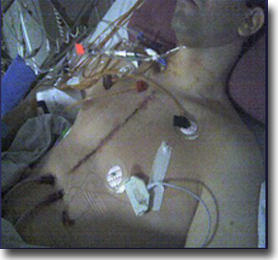 Picture In Intensive Care Unit After Heart Valve Surgery