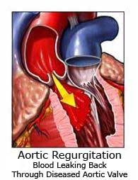 Aortic Valve Regurgitation Backward Bloodflow
