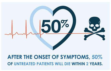 Aortic Stenosis Mortality Statistics