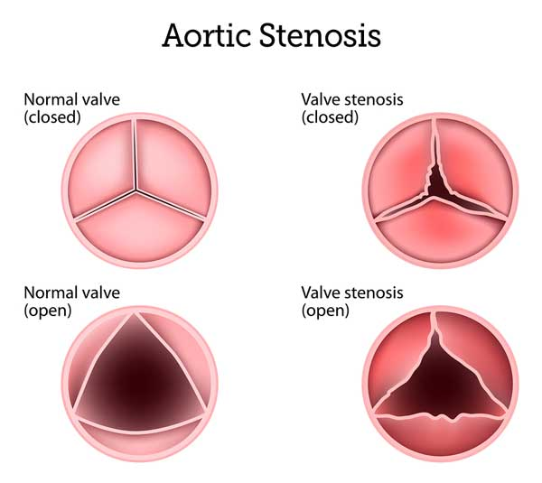 Aortic Stenosis - Symptoms, Causes &, Surgery