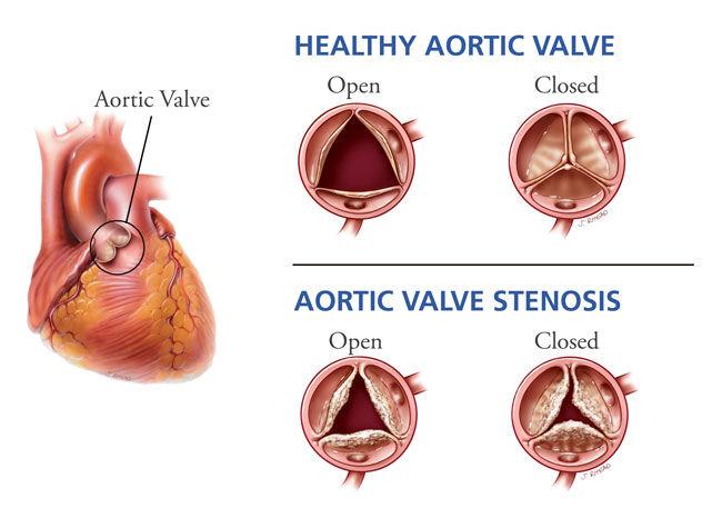 Aortic Valve Stenosis Prognosis