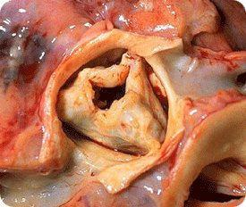 Stenotic Bicuspid Aortic Valve