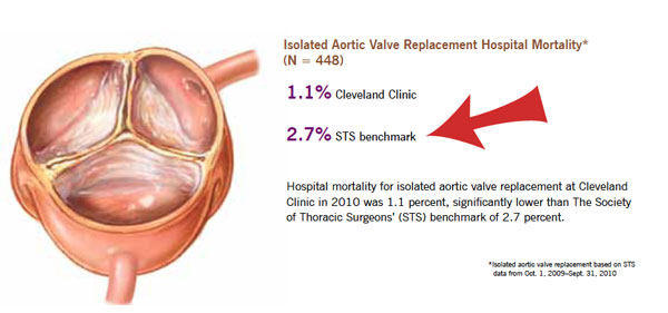 Aortic Valve Replacement Mortality Rate & Risks