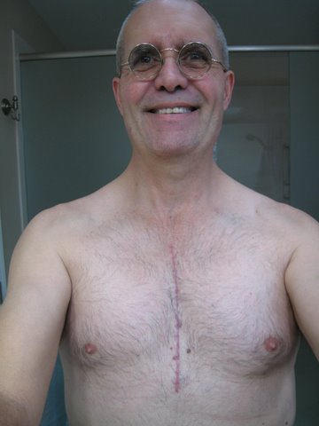 Patient With Incision Down The Middle Of His Chest