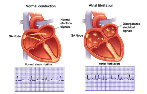 Drawings Of Hearts With Normal & Atrial Fibrillation Heart Rhythms