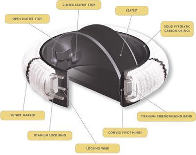 ATS Open Pivot Mechanical Heart Valve Replacement
