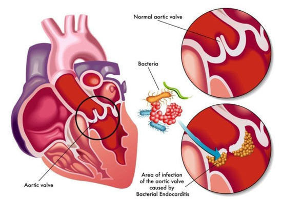 Bacterial Endocarditis in Aortic Heart Valve