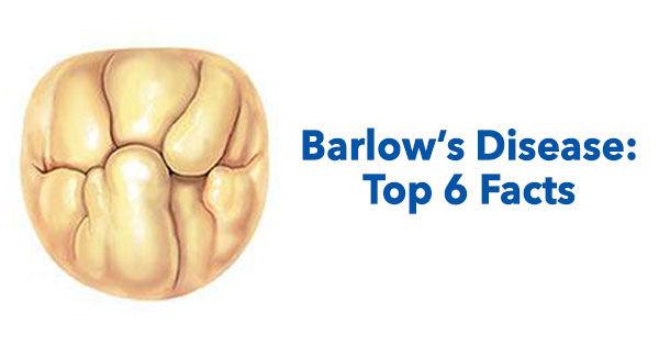 Barlowin Syndrooma