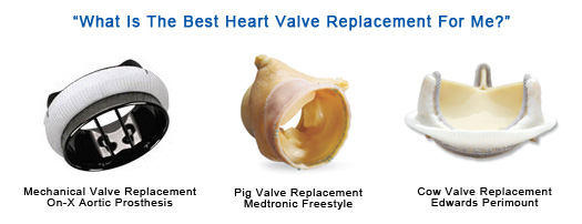 Image Of Different Types Of Heart Valve Replacements