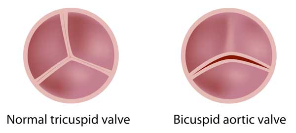 Bicuspid Aortic Valve Comparison
