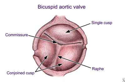 Fused Bicuspid Aortic Valve Showing Commissure