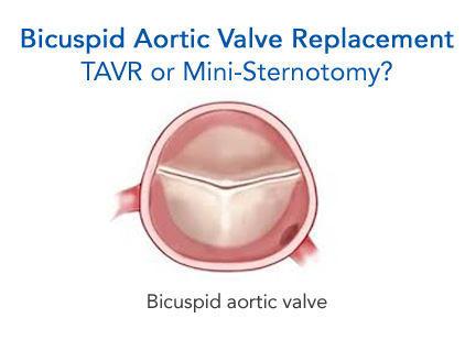 tavr bicuspid aortic valve TAVR or Mini-Sternotomy for Bicuspid Aortic Valve Patients?