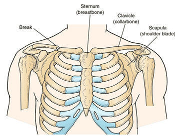 collarbone pain after heart surgery -- patient story, Cephalic Vein