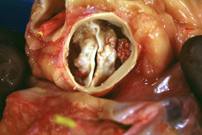 Calcified Aortic Valve Picture - Two Leaflets Narrowed