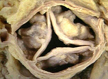 Aortic Stenosis Caused By Calcified Heart Valve Leaflets