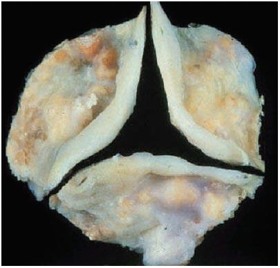 Calcified  Aortic Valve Leaflets With Three Cusps