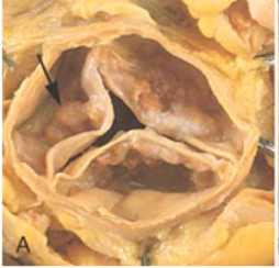Calcified Leaflets Aortic Valve