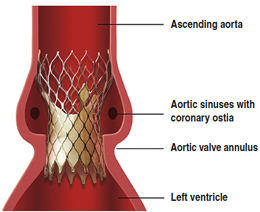 CoreValve Positioning In The Aortic Valve By Medtronic