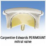 Edwards Lifesciences Mitral Valve