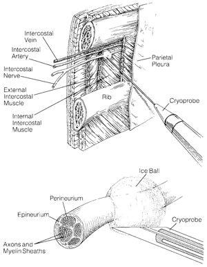Cryoanalgesia Incision