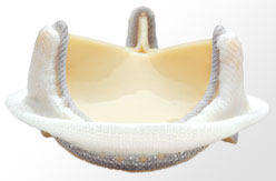 Biological Aortic Valve Replacement Device