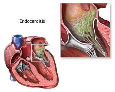 Bacterial Endocarditis - Heart Valve Infection Disease