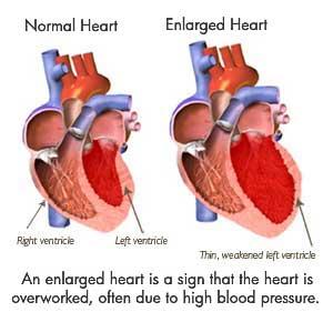 Normal & Enlarged Heart Comparison