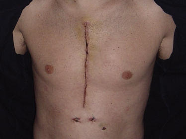 Glued Incision After Heart Surgery