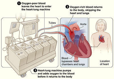 Heart And Lungs Diagram | Heart Lung Machine Longer During Robotic Valve Surgery