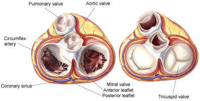 Heart valve flaps what should patients know below you can see two diagrams of the human heart with the white valve flaps in the opened and closed position ccuart