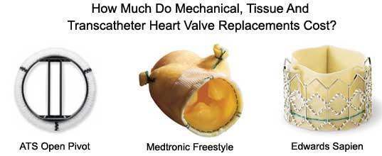 Costs of Heart Valve Replacements - Mechanical, Tissue, Bioprosthetic, Homografts