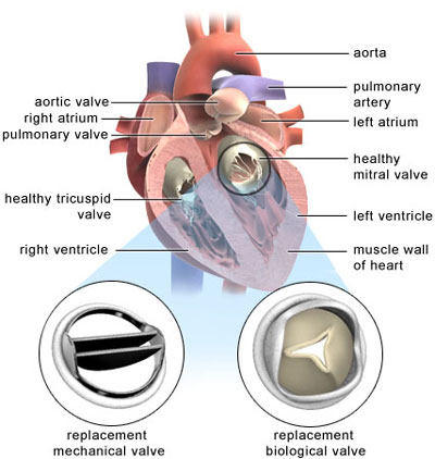 Heart Valve Replacement - Tissue and Mechanical Valve in Mitral Position