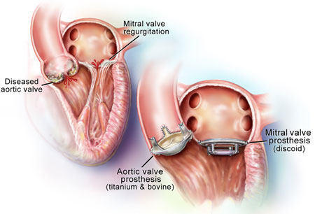 Heart Valve Replacement Diagram For Aortic & Mitral Positions