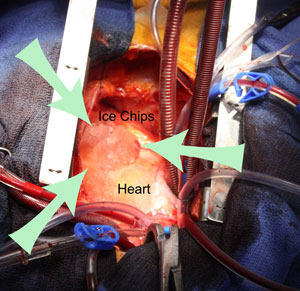 Ice Chips On Heart During Cardiac Surgery
