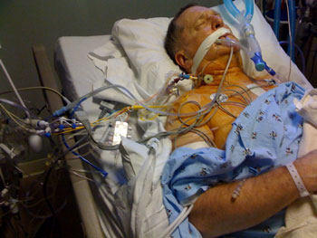 Patient In ICU Connected To Multip Tubes