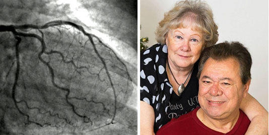 Angiograms Before Heart Surgery