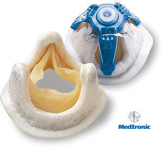 Medtronic Mosaic Heart Valve Replacements