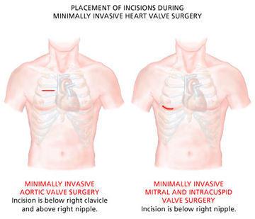 mini-incisions-valve-surgery