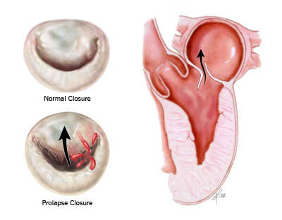 Mitral Valve Prolapse Diagram Drawings