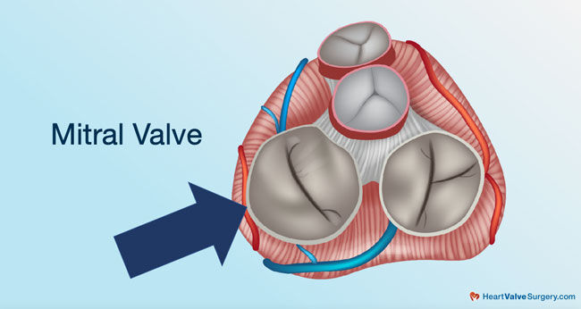 Mitral Valve Diagram