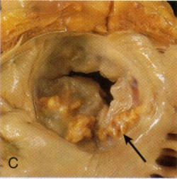Calcified mitral valve annulus.