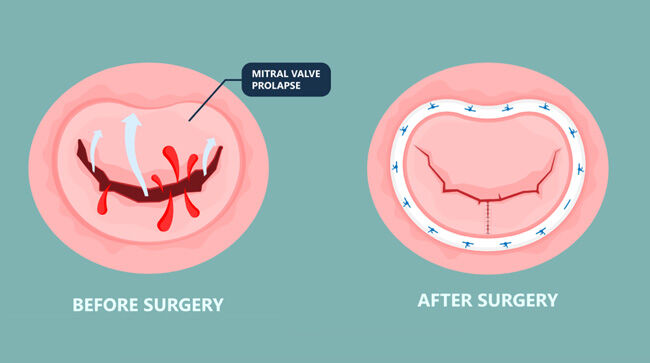 Mitral Valve Repair: Before & After Resection & Annuloplasty Ring